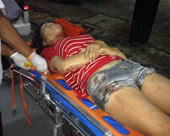 Phuket Police hunting boyfriend after woman slashed, beaten | Thaiger