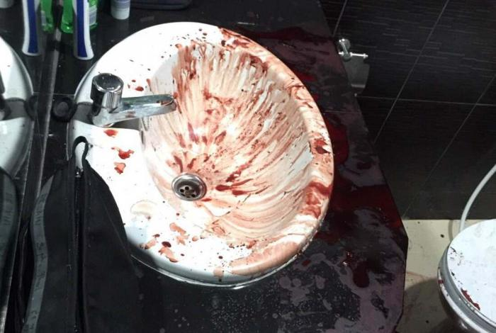 Patong hotel staff walk into bloodbath | The Thaiger