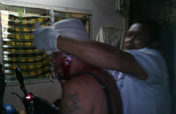 Man on the run after shooting boss in the head | The Thaiger