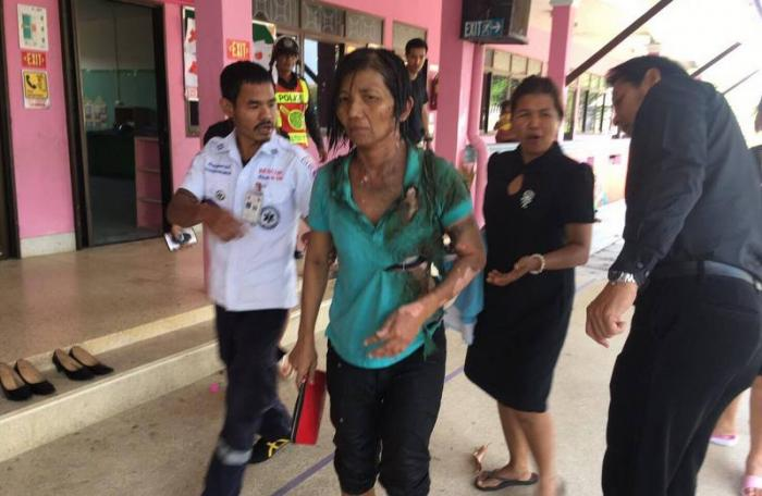 Phuket woman set on fire, ex-husband wanted by police | The Thaiger