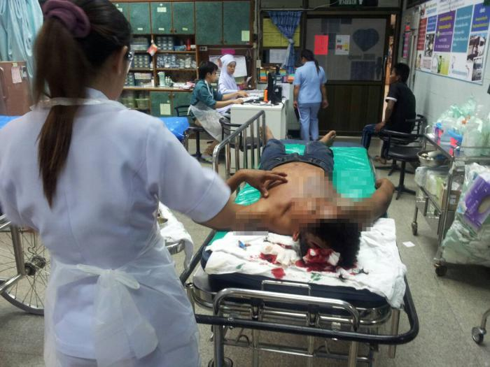 Phuket man attacked after alleged rape of 14-year-old stepdaughter | The Thaiger