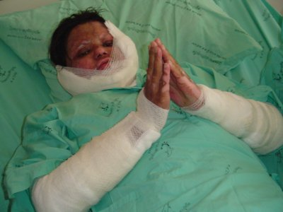 Burn victim Saijai slowly healing | The Thaiger