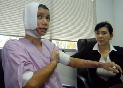 Patong waitress in acid attack horror   The Thaiger