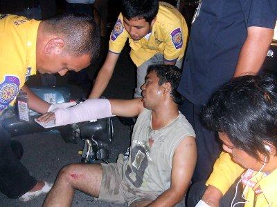 Filipino injured in Phuket motorbike crash | The Thaiger