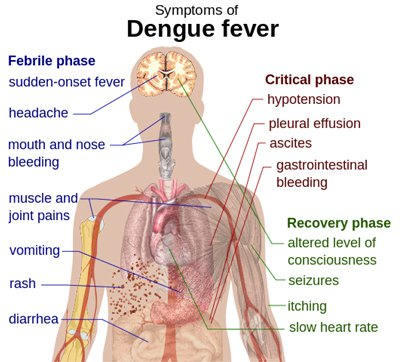 Phuket Media Watch – dengue outbreak; alcohol update; New York woman crushed by lift | The Thaiger