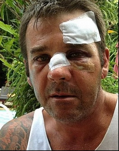 Phuket Violence: Another tourist severely beaten by taxi drivers | The Thaiger