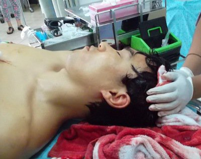 Korean tourist survives gash in head from longtail propeller | The Thaiger