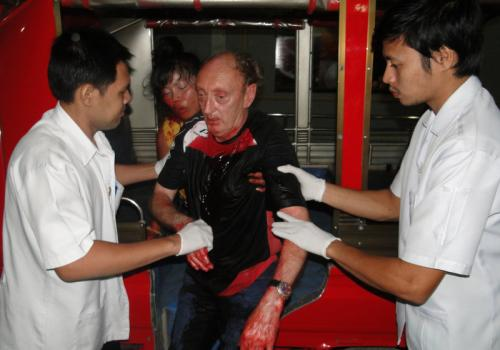 Belgian expat stabbed by Thai girlfriend out of Phuket ICU | The Thaiger