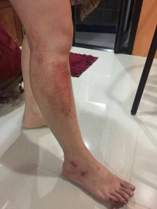 Chinese tourist assaulted in Krabi | News by Thaiger