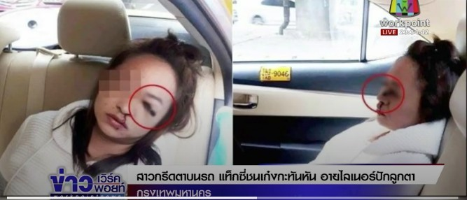 Bangkok: Thai passenger ends up with eye-liner pencil stuck in her eye after taxi accident   News by The Thaiger