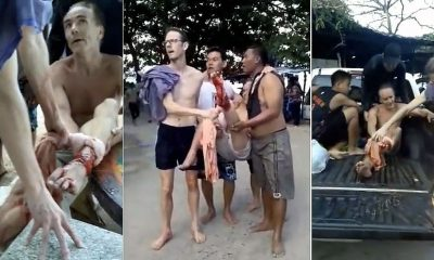 Thai Tourism Ministry pays 66,000 baht to Norwegian shark attack victim | The Thaiger