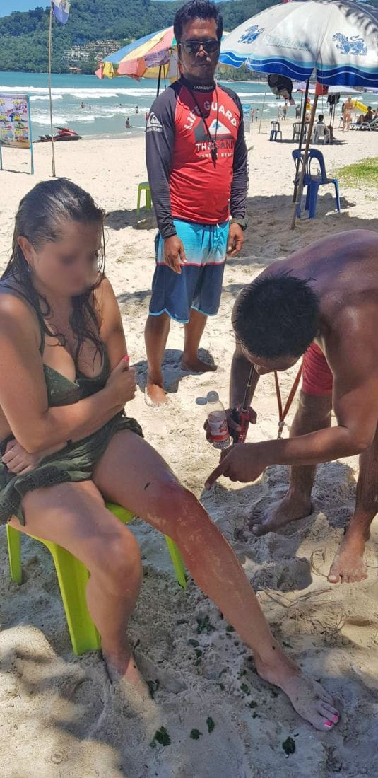 Russian tourist stung by 'fire jellyfish' at Patong Beach | The Thaiger