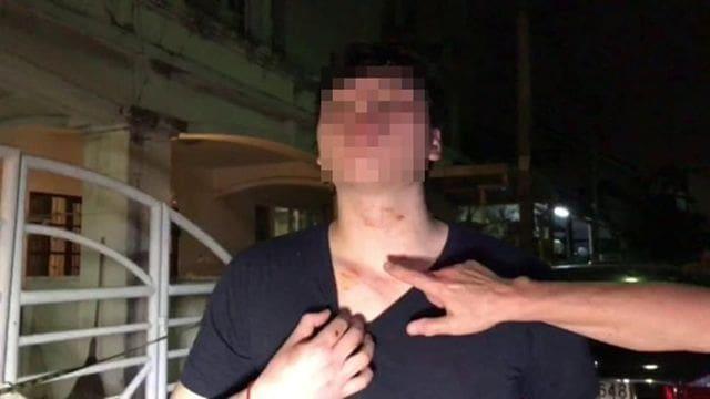 ยิงโจรขึ้นบ้านตาย เข้าข่ายป้องกันตัวแค่ไหน | News by The Thaiger