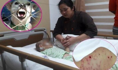 Three year old savaged by local dogs in Chon Buri | The Thaiger