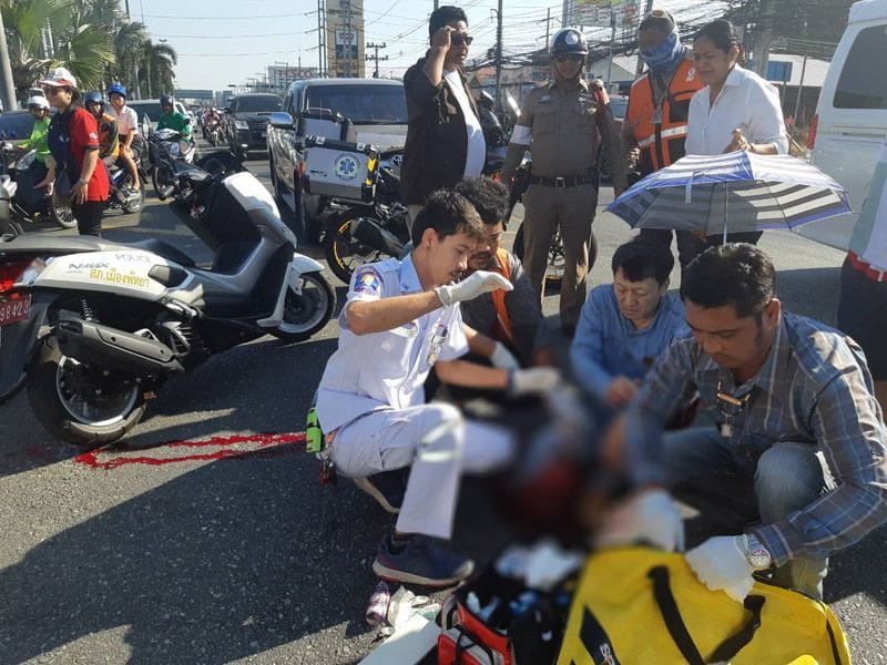 Pattaya tourist loses a leg in collision with pickup | News by Thaiger