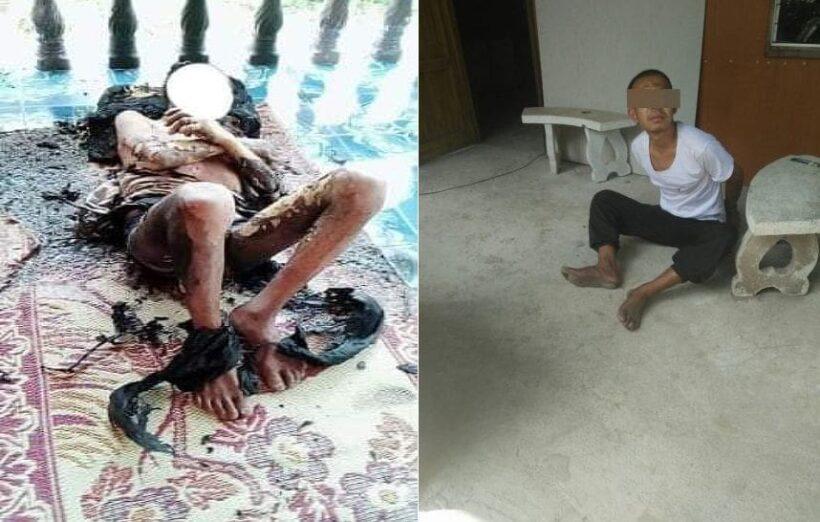 ชาวบ้านวอนประหารลูกทรพีเมา ราดน้ำมันจุดไฟเผาพ่อบังเกิดเกล้า! อาการยังโคม่าทรมาน | The Thaiger