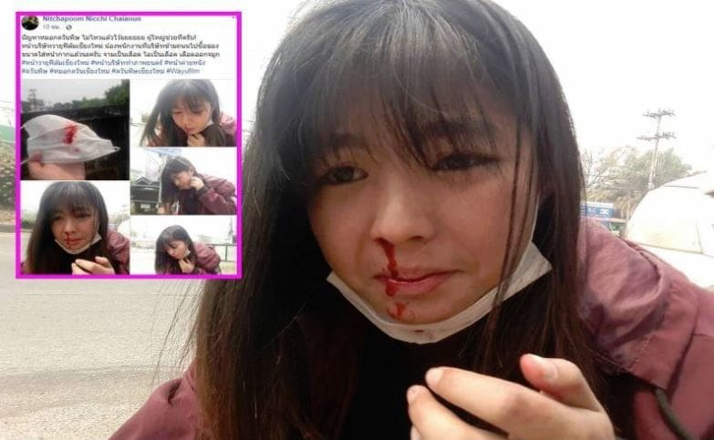 Production staff coughs up blood during filming in Chiang Mai | The Thaiger