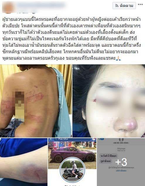 ชาวเน็ตแห่แชร์ เน็ตไอดอลสาวถูกแฟนหนุ่มซ้อมปางตาย ลามไปขู่ยันแม่ | News by The Thaiger
