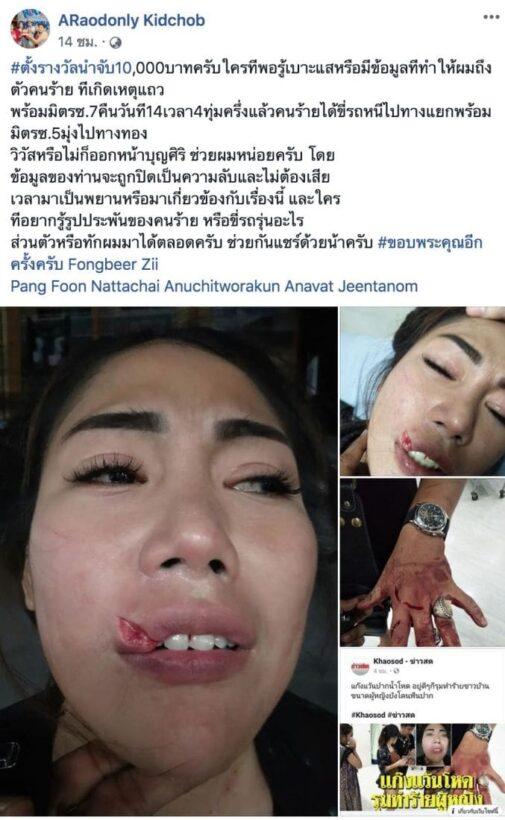 หนุ่มโพสต์เดือดล่าแว้นโหดสมุทรปราการ รุมทำร้ายชาวบ้าน แฟนสาวโดนฟันปากฉีก   News by The Thaiger