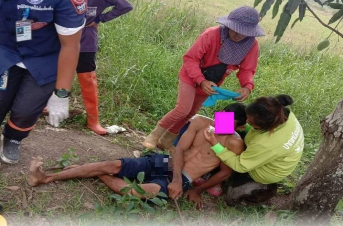 Ouch! Man falls from mango tree, ends up with metal rod through his testicles | The Thaiger