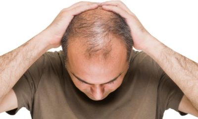 Hair loss. Is there a real solution? | The Thaiger