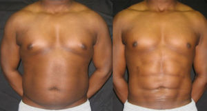Six-Pack Surgery offers painless solution to lazy gym goers | News by Thaiger