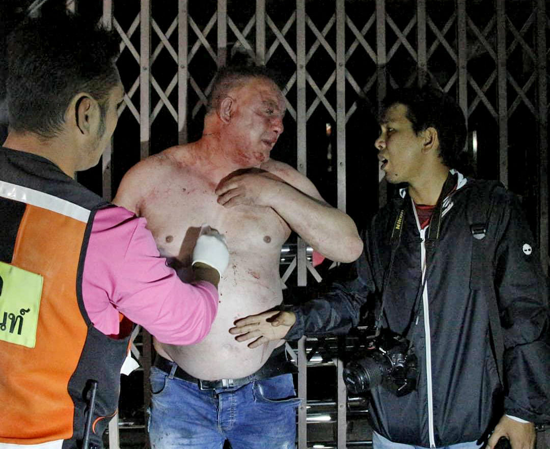 Injured Irish tourist refuses to pay, starts fight, ends up on footpath in Pattaya   News by Thaiger