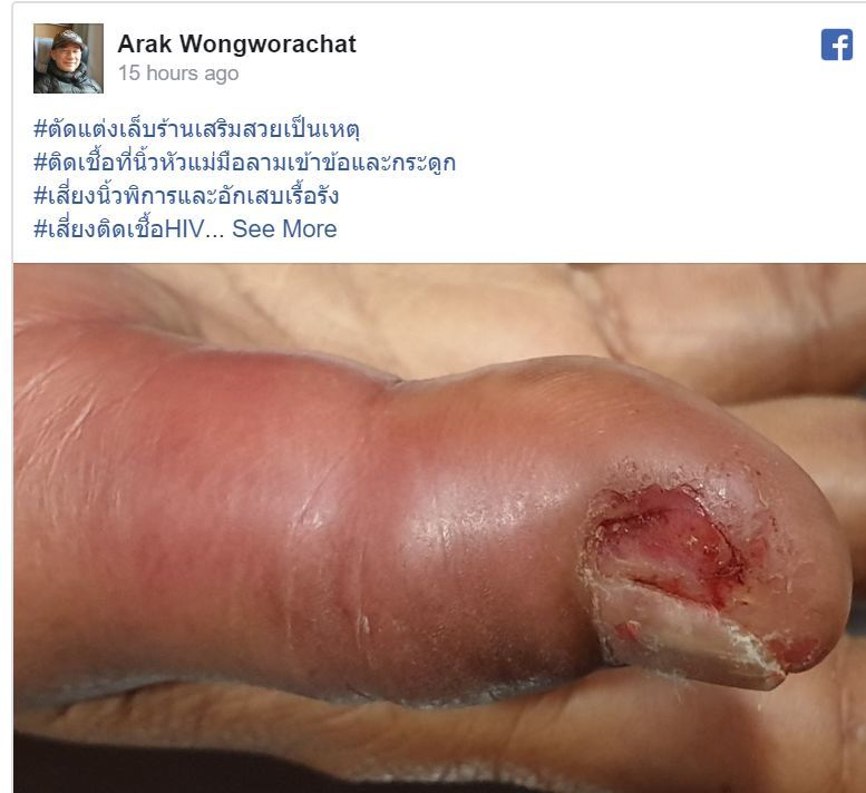 Doctor in southern Thailand issues warning after manicure goes VERY wrong | News by Thaiger