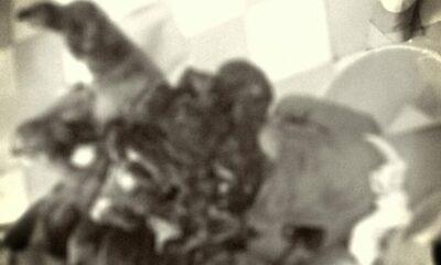 Hải Dương: Cậu bé lớp 9 phải cắt cụt bàn tay vì mua thuốc nổ trên mạng | The Thaiger
