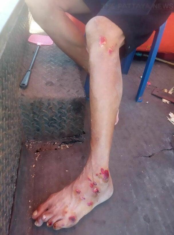 Chon Buri sugarcane vendor dragged behind motorbike after thief steals his phone | News by Thaiger