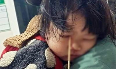 Gia Lai: Bé gái 3 tuổi bị que kem đâm vào hốc mắt do vừa ăn kem vừa đùa nghịch | Thaiger