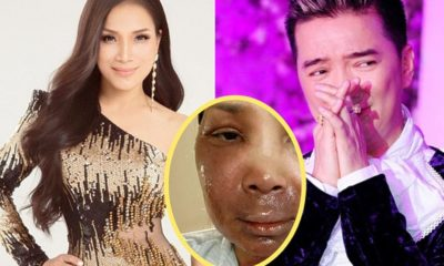 Sau tai nạn nổ nồi xông hơi, ca sĩ Hồng Ngọc chia sẻ hình ảnh gương mặt bị bỏng nặng | Thaiger