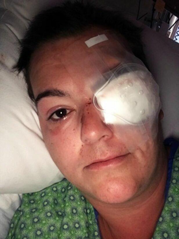 Biểu tình tại Mỹ: Nữ phóng viên bị bắn mù mắt khi đang tác nghiệp | The Thaiger