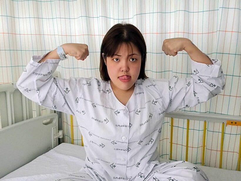 'Thánh ăn' Yang Soo Bin bị bệnh ung thư tuyến giáp   The Thaiger