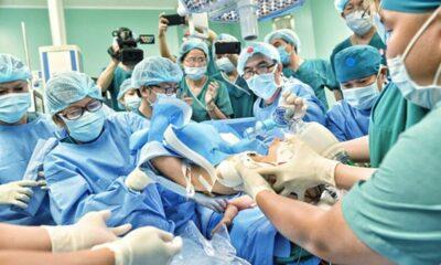 Phẫu thuật tách rời cặp song sinh dính liền Trúc Nhi – Diệu Nhi thành công | Thaiger