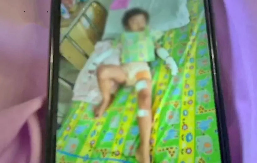 Toddler, playing with hand gel, set alight by brother | News by Thaiger