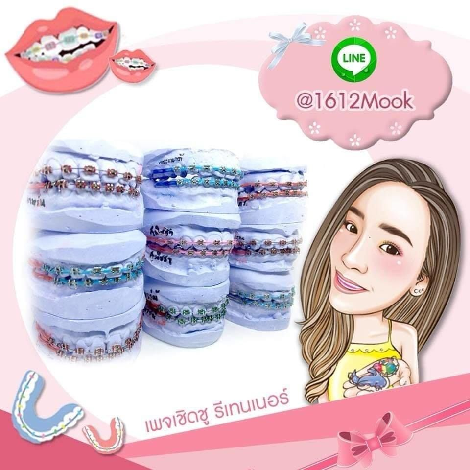 Police arrest woman for allegedly selling fashion dental retainers | News by Thaiger